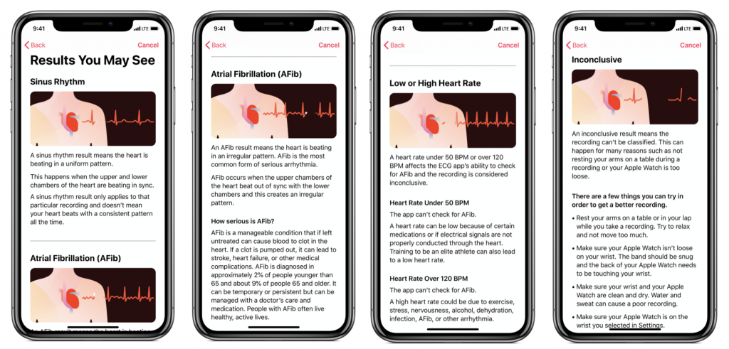 apple health onboarding process for ecg app