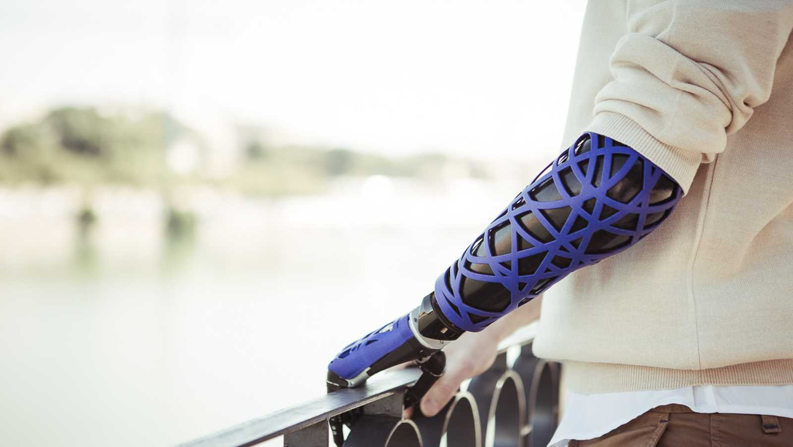 bertolt meyer with prosthetic arm